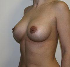Отзывы с форумовКормление грудью после операции по