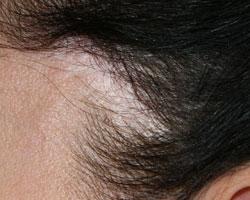 Каких врачей следует пройти если выпадают волосы