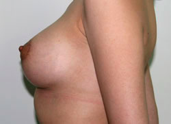 Это правда что капуста увеличивает грудь