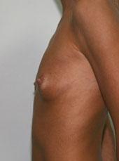 Крем для живота и груди 9 месяцев