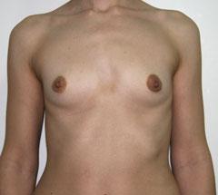 Бабушкин ецепт увеличения груди на 2 размера