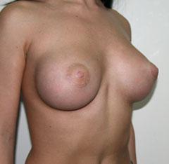 Женские гормоны для увеличения груди цена