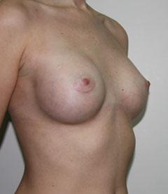 йога для увеличения бюста отзывы
