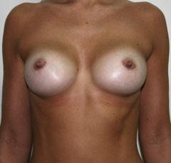 Прозрачные силиконовые накладки для увеличения груди