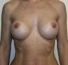 Как увеличить грудь если мне 11