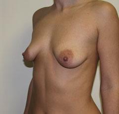 Тайские крема для увеличения груди отзывы