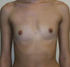 Увеличение груди в иркутске цена
