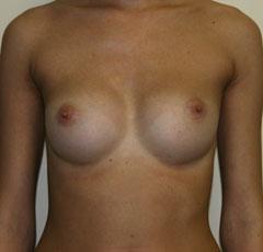 Силиконовые вкладки под грудь увеличение груди увеличение груди москва logsitem372