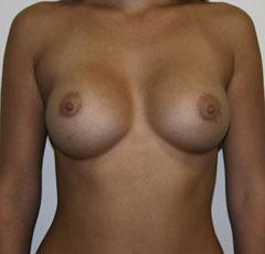 Советы девушкам как увеличить грудь