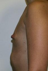 Пусть говорят увеличить грудь без силикона