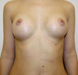 Увеличение груди воронеж массаж