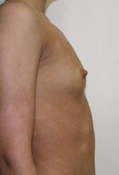 Как увеличить грудь природным способом