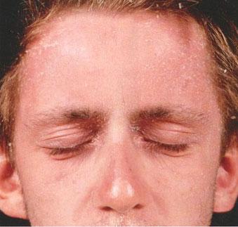 Псориаз головы отличается от перхоти