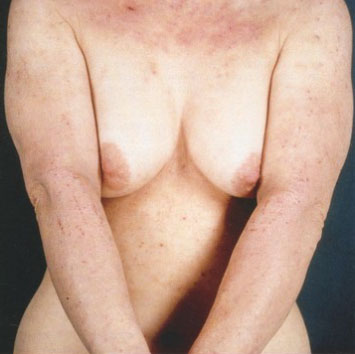 Кортикостероиды мази при псориазе