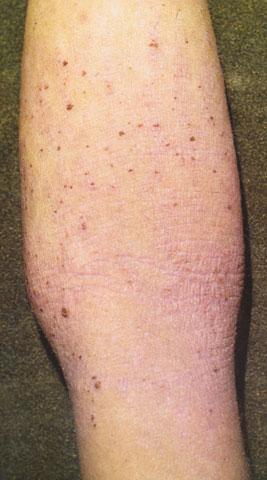 Народные средства против атопический дерматит