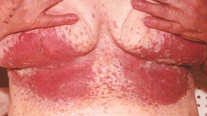 Себорейный дерматит или себорейную экзему на голове