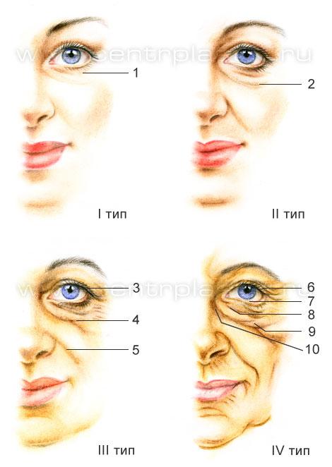 cirugia blefaroplastia transconjuntival parpados