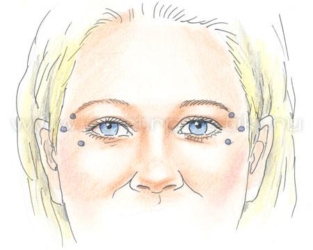 ботулинотерапия техника проведения
