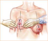 Как мужчины относятся к увеличенной груди