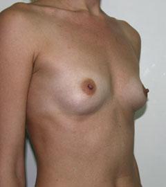 Фото висящая грудь