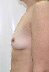 Как увеличить грудь операция в германии