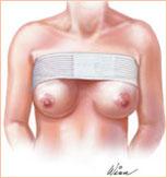 Круглые силиконовые груди порно