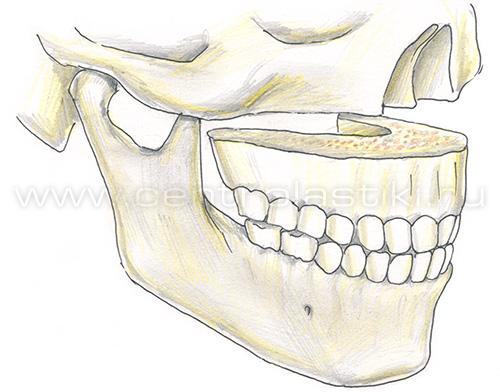 Остеотомия верхней челюсти