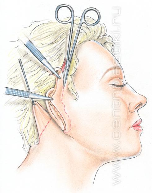 Как проходит операция подтяжки лица