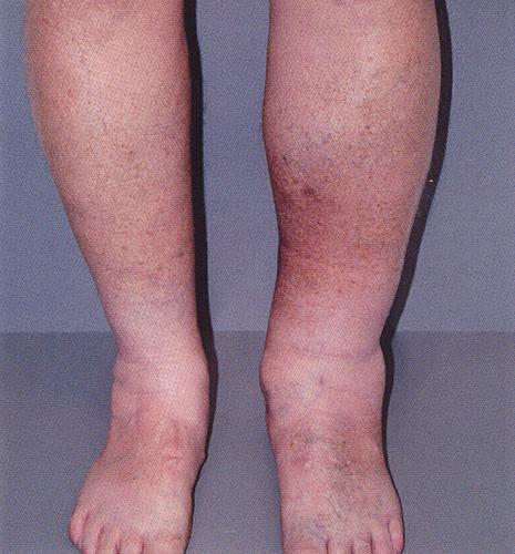 Стоимость лечения варикоза лазером
