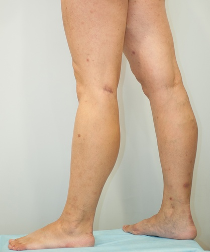 Артрит большого пальца ноги лечение отзывы