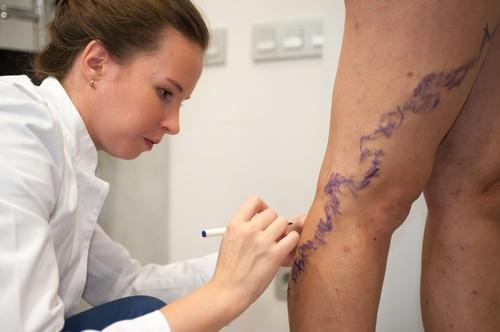 Лечение варикоза вен на ногах лазером воронеж