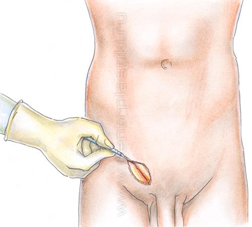 Геморрой у женщин: лечение, причины, симптомы