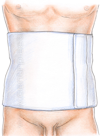Сколько носить бандаж после операции на простату