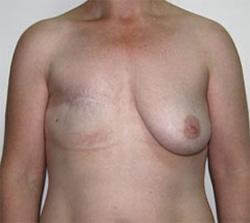 Сколько стоит пластика по увеличению груди