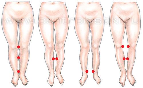 Лечим косточки на ногах Ортопедия и травматология