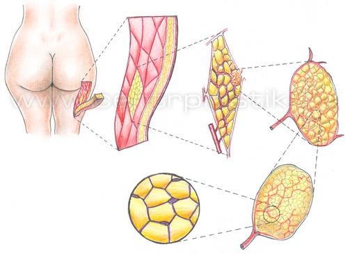 липосакция целлюлита