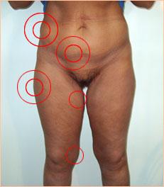 как удалить жир с живота у мужчин
