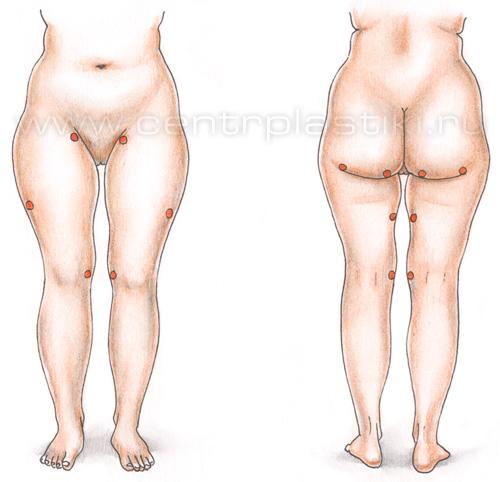 операция удаление жира на животе
