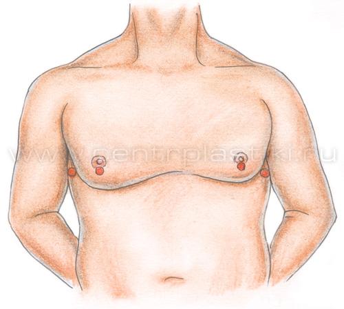 убрать жир боков груди