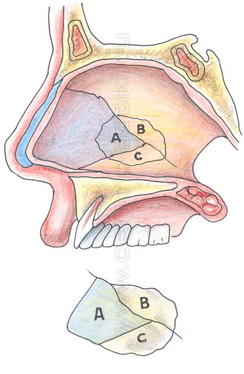 Септопластика исправление носовой перегородки