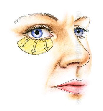 малярный жир под глазами как убрать