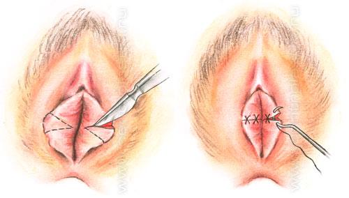 Операция по уменьшению малых половых губ.