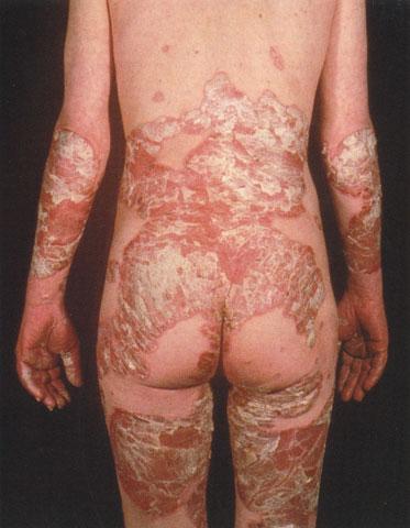 """Псориаз сгибательных поверхностей (flexural psoriasis), или  """"обратный псориаз """"..."""