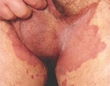 лечение пищевой содой глистов