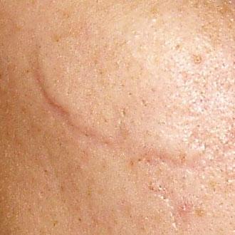 шрамы на коже фото