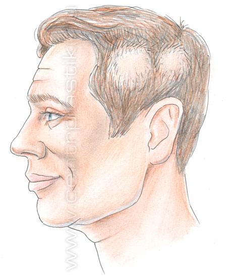 Другая распространенная причина выпадения волос — инфекционные