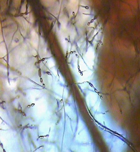 кожные заболевания грибок мицелий.