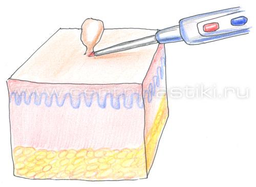 удаление папилломы волосом