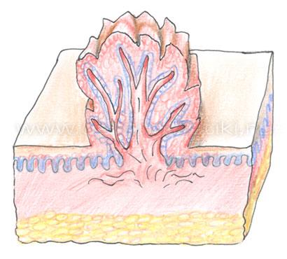 Что такое папиллома человека лечение полынью