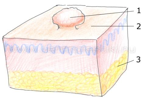 Папиллома на теле почернела